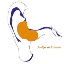 audifono-concha-GA