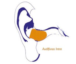 audifonos-intra-GA