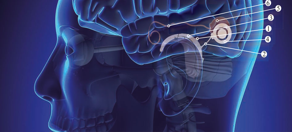 implante-coclear1-GA
