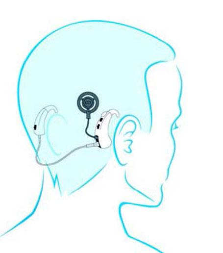 implante-coclear4-GA