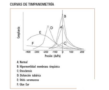 curvas-timpanometria-GA