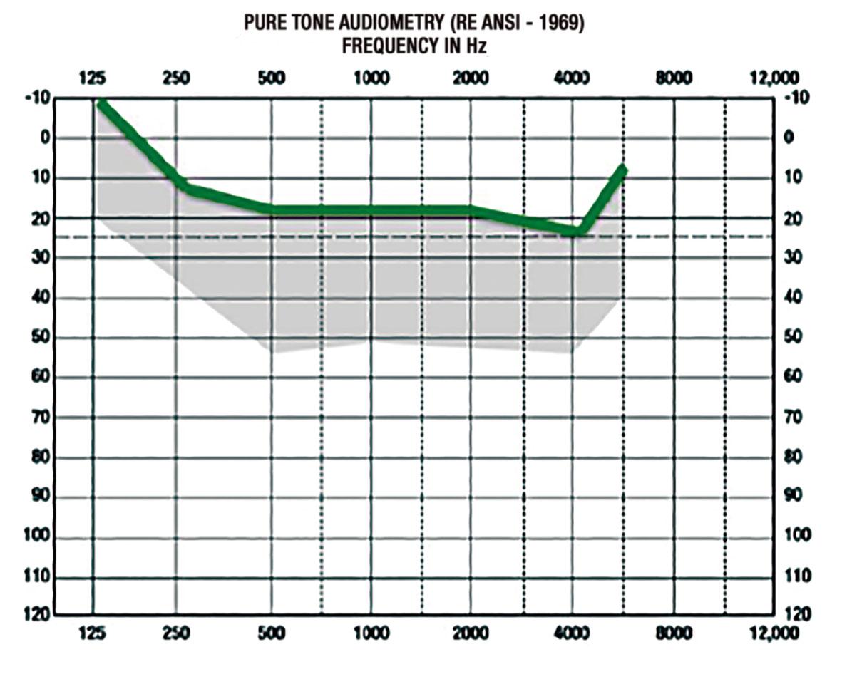 pure-tone-grafico-GA